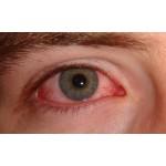 Porque tenho os olhos vermelhos?