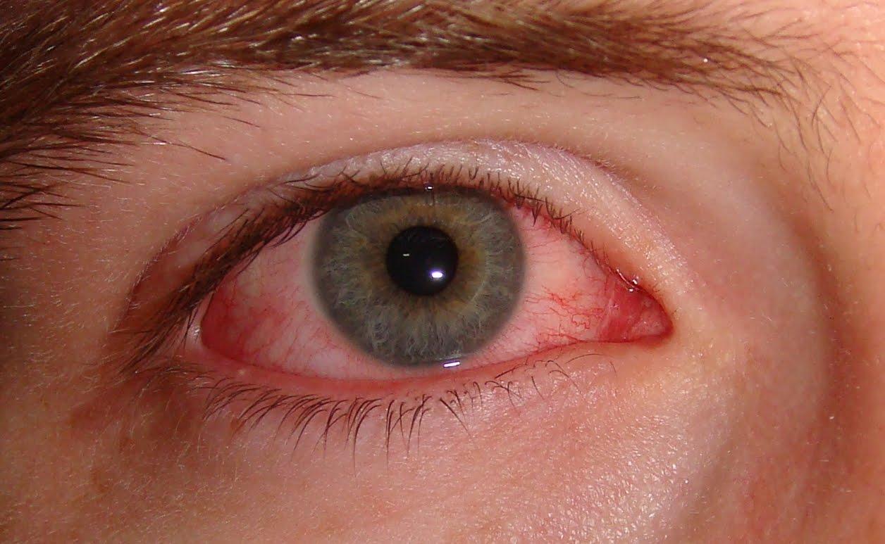 0ba8185829 Porque tenho os olhos vermelhos?